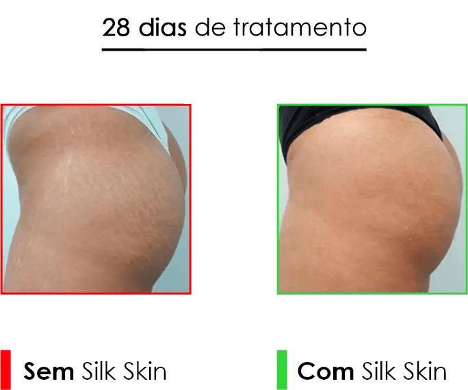 Skin Creme: 28 dias de Tratamento para Estrias