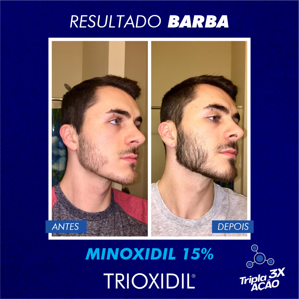 TRIOXIDIL EU BARBUDO