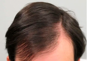 MAN POWER HAIR PREÇO DESCONTO