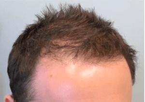 MAN POWER HAIR depoimentos