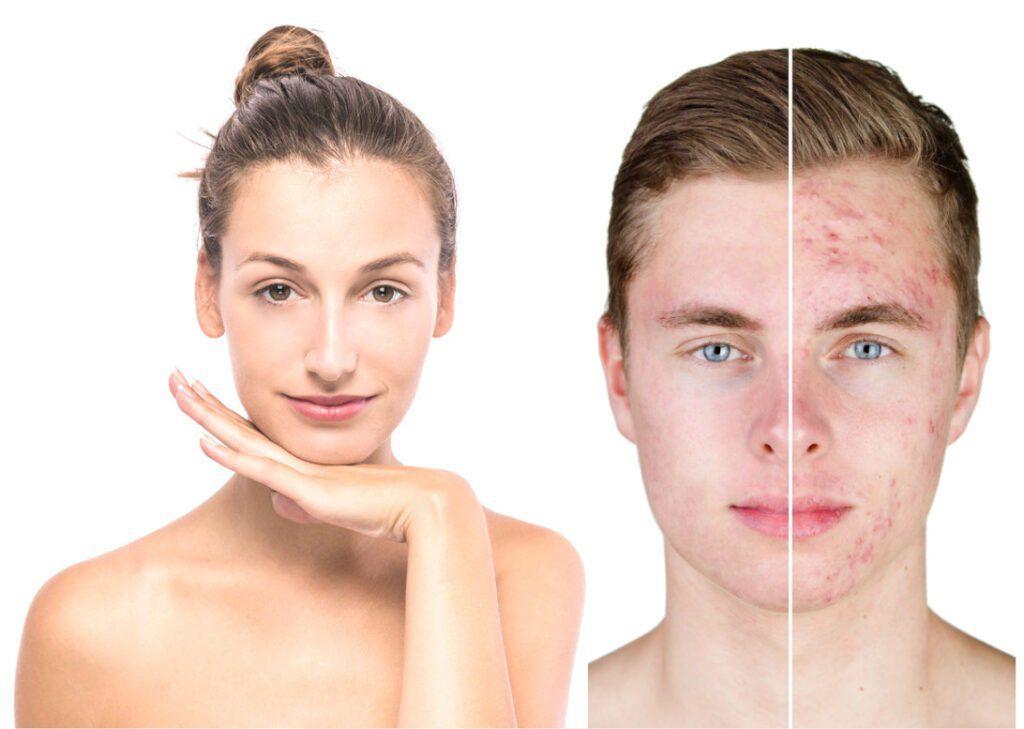 Clean Caps: Solução definitiva Contra Espinhas, Cravos, Manchas. Remove Cravos, Controla a Oleosidade da Pele, Remove Marcas de Acne