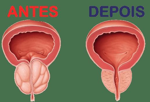 PowerProst Caps Forma Natural de Tratar a Próstata e Controle Urinário