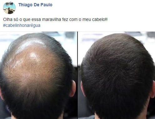 KORUVITAL fim da queda de cabelo